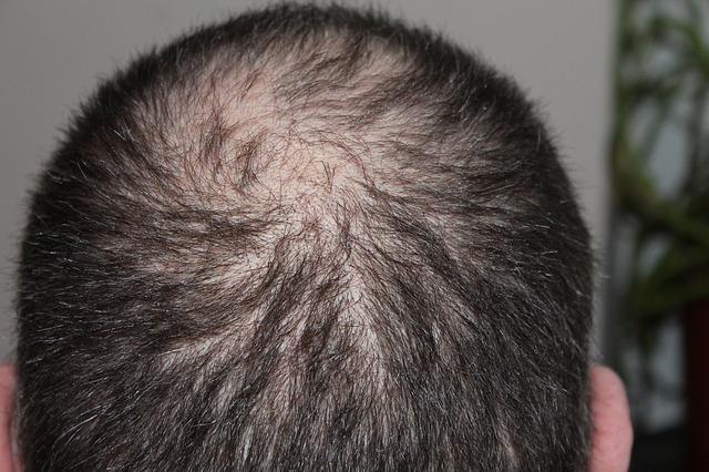 A Greffe de cheveux en Hongrie etnikai tényezői